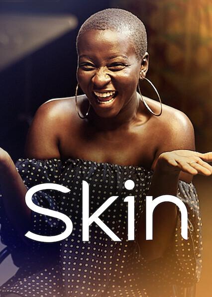 Skin on Netflix UK